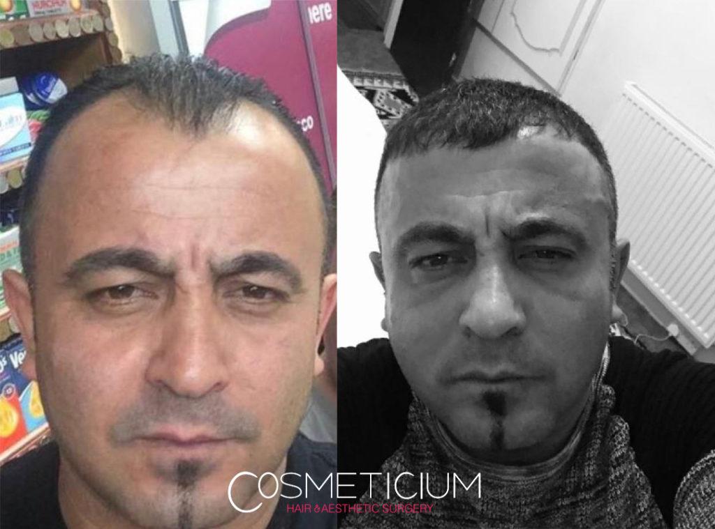 hair transplant at cosmeticium