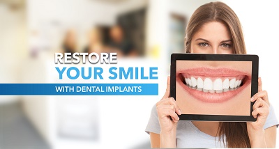 Dental Implant Plus